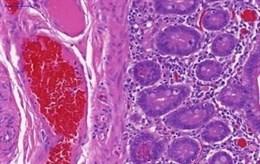 La terapia con inmunosupresores y fármacos antiTNF no aumenta el riesgo de cáncer en enfermedad inflamatoria intestinal