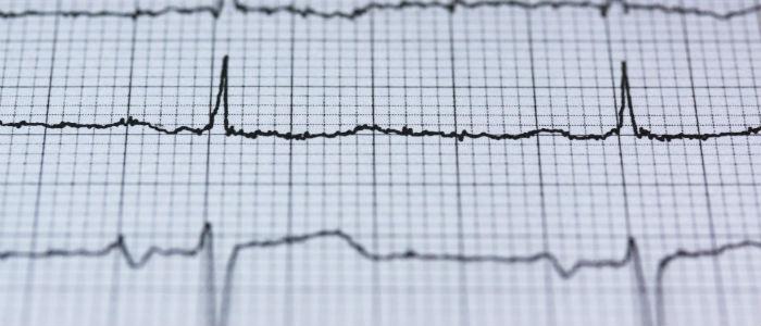 Las inmunomediadas incrementan el riesgo cardiovascular
